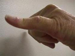 Parmak Şişliği