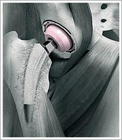 kalçaprotezi